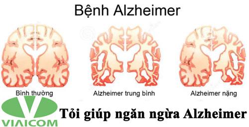 Tỏi giúp ngăn ngừa Alzheimer