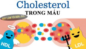 dieu hoa cholesterol 400x229 300x172 - dieu-hoa-cholesterol-400x229