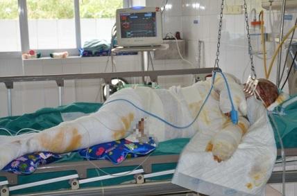 vienbong 2 1589128288407 - Xót xa người vợ trẻ đi hái mít bị điện cao thế giật nguy kịch đến tính mạng